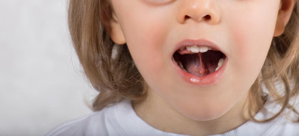 Apraxia da fala na infância